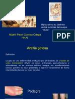 Artritis_Gotosa