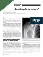 ¿Cómo se lee la radiografía de hombro?