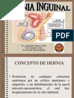 hernia-inguinal