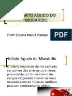 5.INFARTO AGUDO DO MIOCARDIO