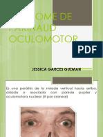 SINDROME DE PARINAUD OCULOMOTOR