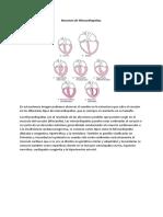 Resumen de Miocardiopatias.