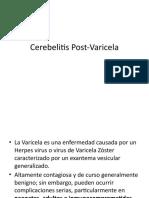 Cerebelitis Post-Varicela