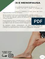 Varizes e Menopausa - Dr. Alexandre Amato