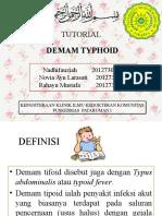 tyfoid