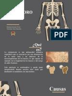 EXPOSICION OSTEOPOROSIS-FINAL