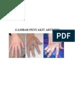 Gambar Penyakit Artritis Pripa Dimas