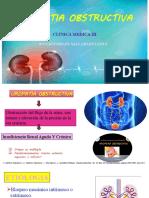 5. Uropatia obstructiva