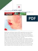SLE penyakit seribu wajah