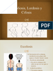 Escoliosis Lordosis y Cifosis