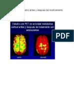 Imagen del cerebro antes y despues del medicamento a niños tdah