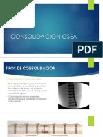 CONSODILACION OSEA