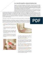 Epicondylite