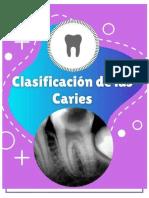 INFORME CLASIFICACION DE CARIES