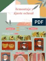 Remontaje y Ajuste Oclusal_ (2)