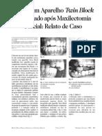 Uso de um Aparelho Twin Block Modificado após Maxilectomia Parcial Relato de Caso Clínico 117