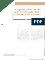 Ancoragem esquelética com miniimplantes incorporação rotineira da técnica na prática ortodôntica
