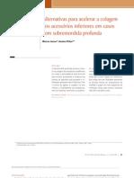 Alternativas para acelerar a colagem dos acessórios inferiores em casos com sobremordida profunda