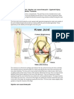 Knee Pain – Knee Joint - Injuries can cause knee pain - Ligament injury, Meniscus tears, Tendinitis, Fractures - New Delhi, India