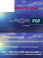 ostéomyélite