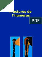 08- Humerus - Fractures