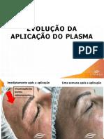 RESULTADO_FACIAL_EQUIPAMENTO_SPECTRA PLASMA-1590437275