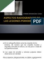 3.-LESIONES PERIODONTALES