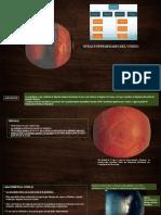 opacidades vitreas MVHH-R2