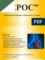 7.- EPOC