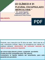 #31 caso clinico  derrame pleural cronico- encapsulado tuberculosis paula forteza