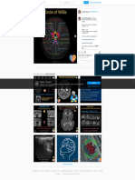 Pediatric Radiology в Instagram_ «- P414 - Normal Thalamic Territories (Part I) . Next post theme_ Variations (Part II)... ? . Watch out! These images aren't real MR images!…»3