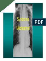 Syndrome Médiastinal