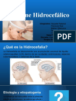 3. Síndrome Hidrocefálico