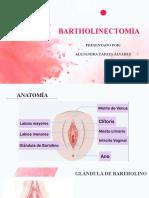 Bartholinectomía
