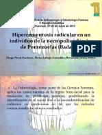 Hipercementosis_radicular_en_un_individu