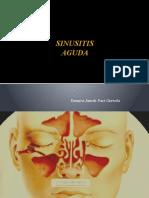sinusitis yasmira