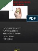 AULA 02 PATOLOGIAS DE CRANIO