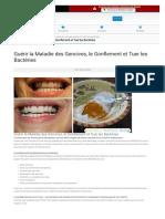 Guérir la Maladie des Gencives, le Gonflement et Tuer les Bactéries - Circulaire en ligne_1589204024240