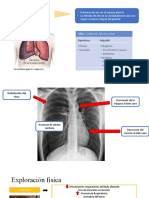 Neumotórax y Atelectasia