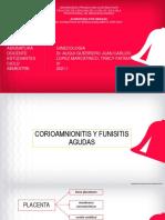 Corioamnionitis y Funisitis