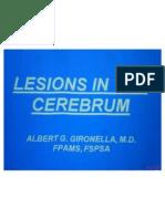 Lesion in Cerebrum