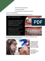 intro ortodoncia