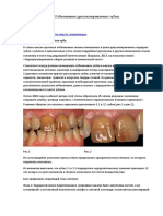 Otbelivanie_depulpirovannykh_zubov