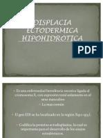 DISPLACIA ECTODERMICA HIPOHIDROTICA buena