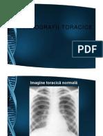 Radiografii_toracice