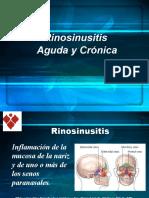 SINUSITIS AGUDA Y CRONICA (1)