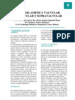 9_estenosis_aortica