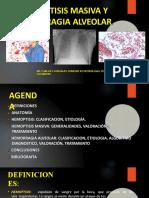 hemoptisismasivayhemorragiaalveolar-160420040617