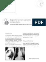 radiologia de bronquiectasia