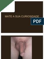 cirurgia de mudança de sexo